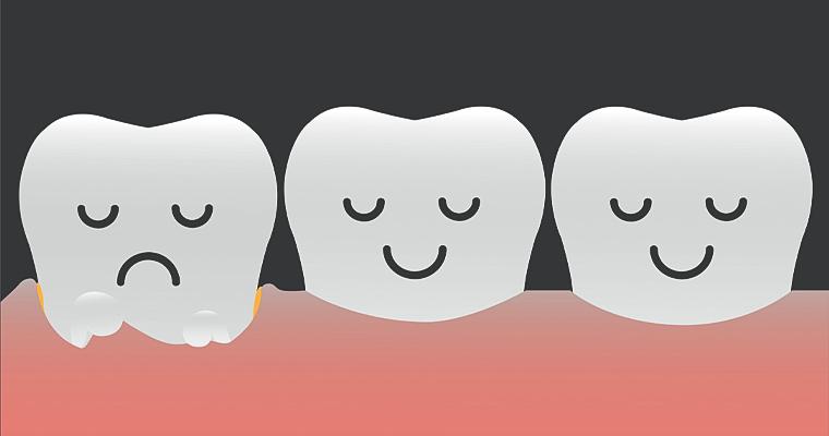 Стоматологія у кредит: чи потрібно брати гроші на лікування?